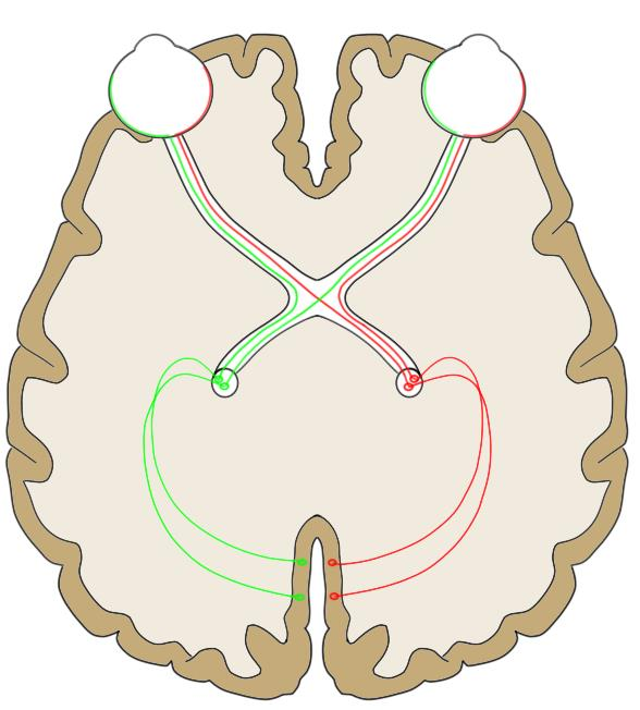 """2-Minute Neuroscience<a href=""""/blog/2-minute-neuroscience-optic-nerve-cranial-nerve-ii"""">→</a><strong>Optic nerve</strong>"""
