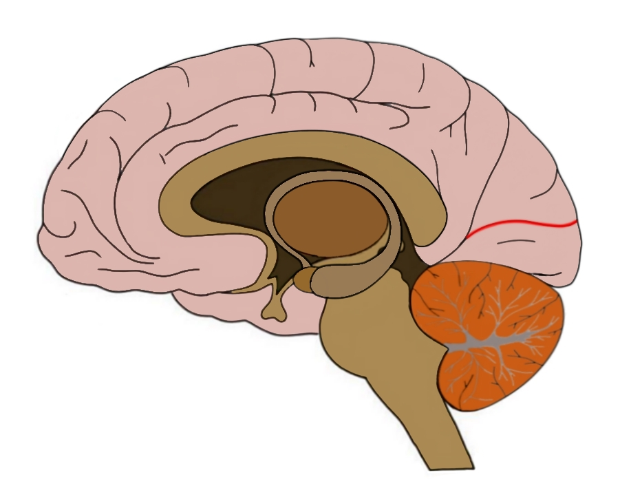 the calcarine sulcus is outlined in red.