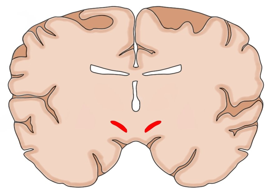 A coronal section of the brain with the subthalamic nucleus highlighted in red.