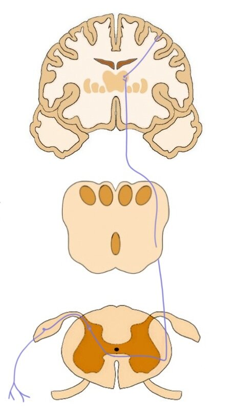 The pathway of the lateral spinothalamic tract.