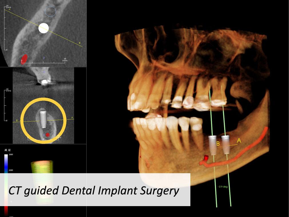 implantplan.jpg