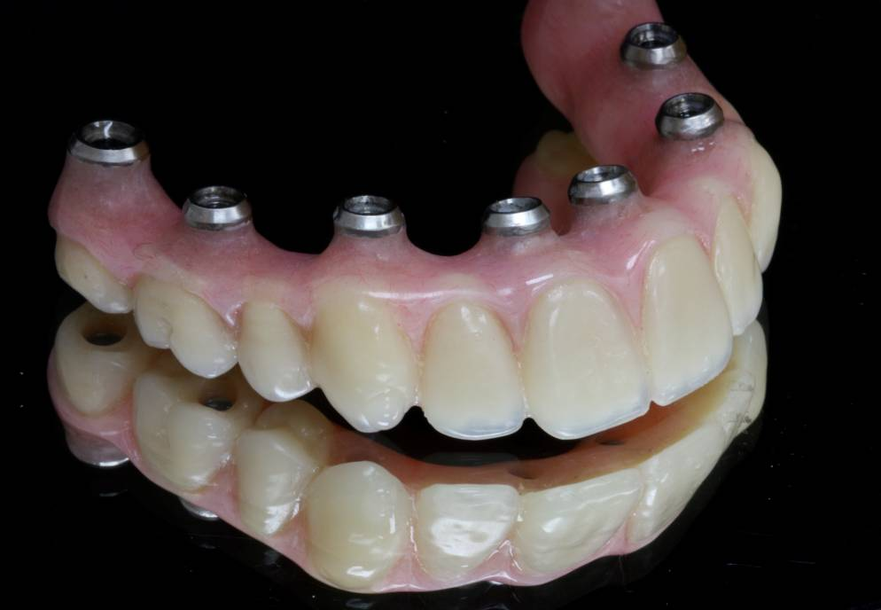 Full arch restorations can be fabricated for the top or bottom teeth.