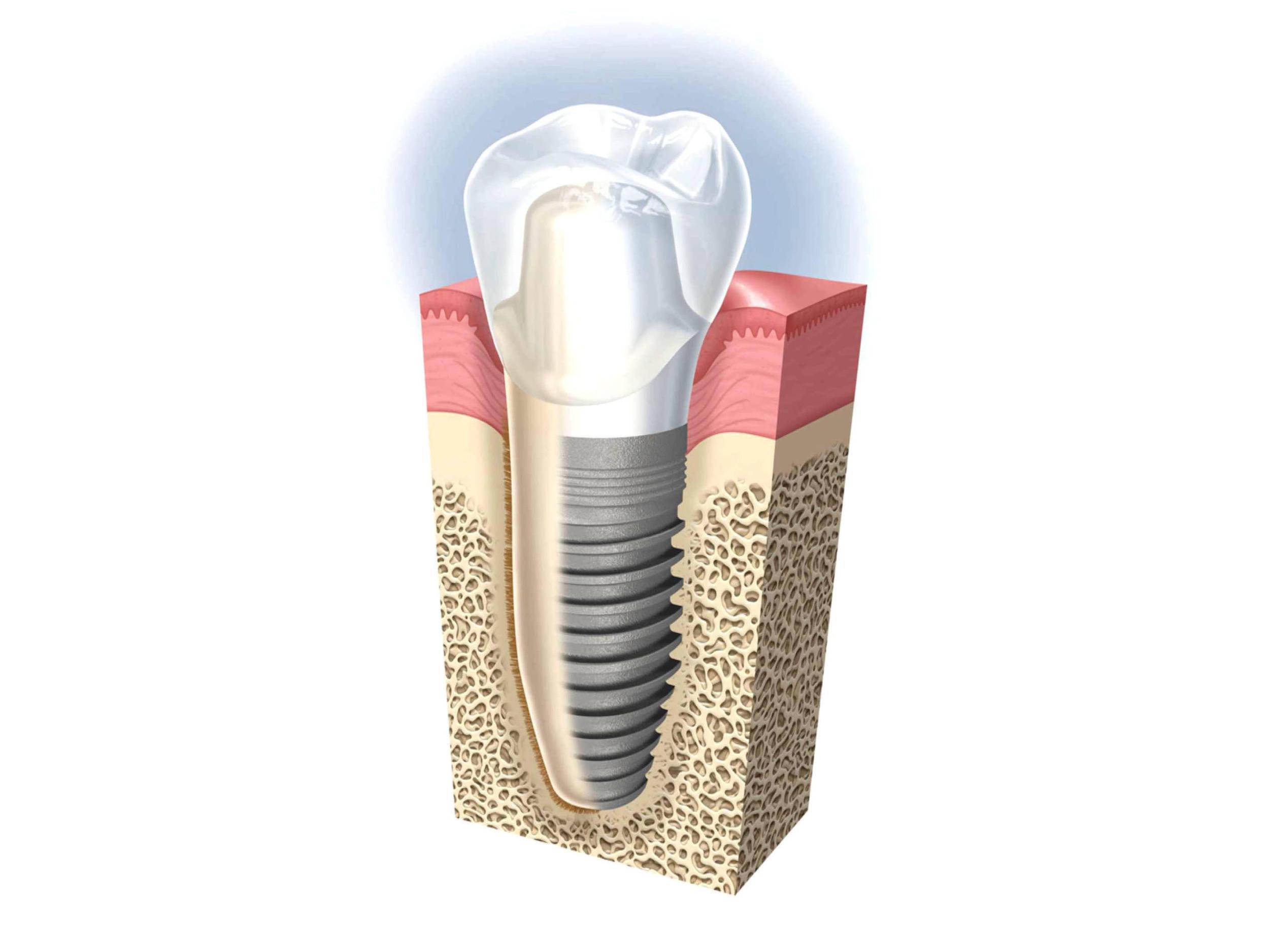 dentalimplant2.jpg