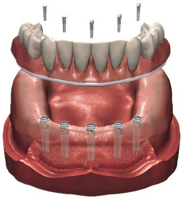 Full Arch Dental Restoration . Being retained to the implants with microscrews, this is the ultimate in stability and function.