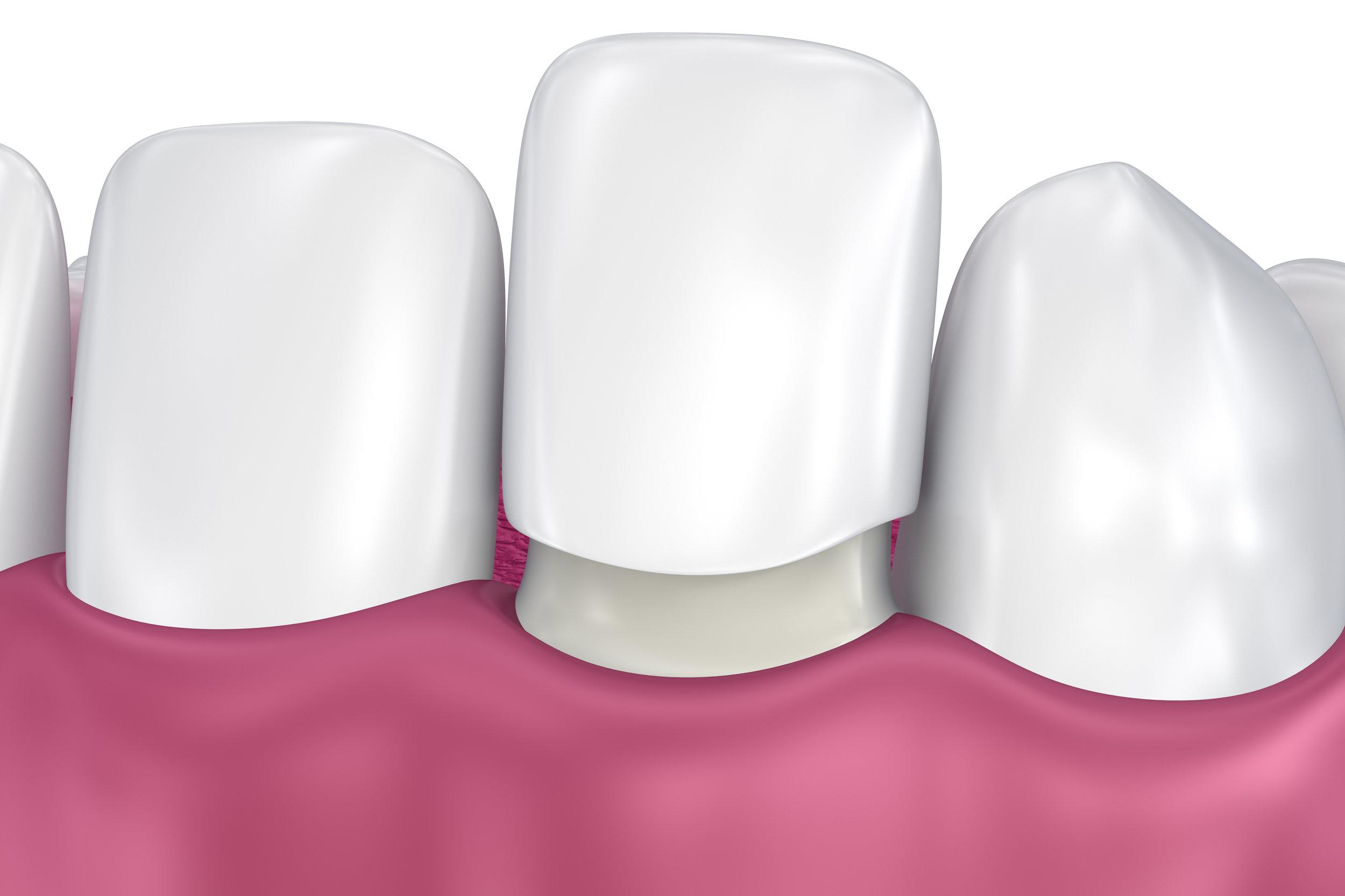 Canva - Dental Veneers_ Porcelain Veneer installation Procedure. 3D illustration.jpg