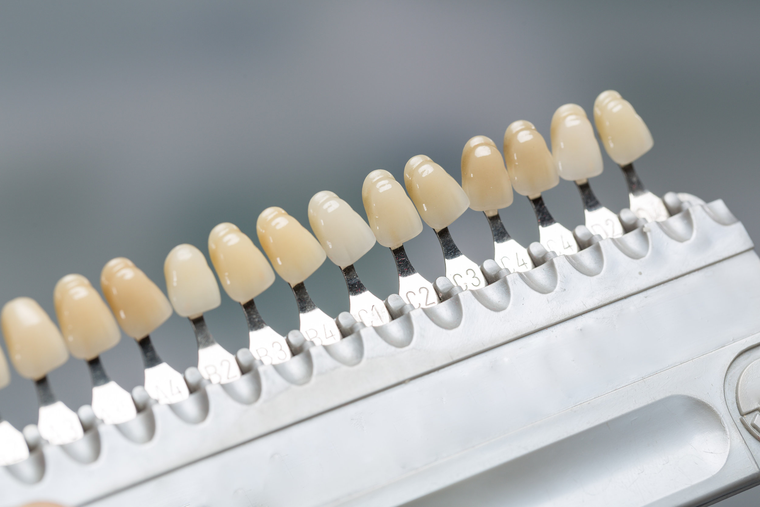 Canva - Close up of shade guide to check veneer of tooth crown in a dental laboratory.jpg