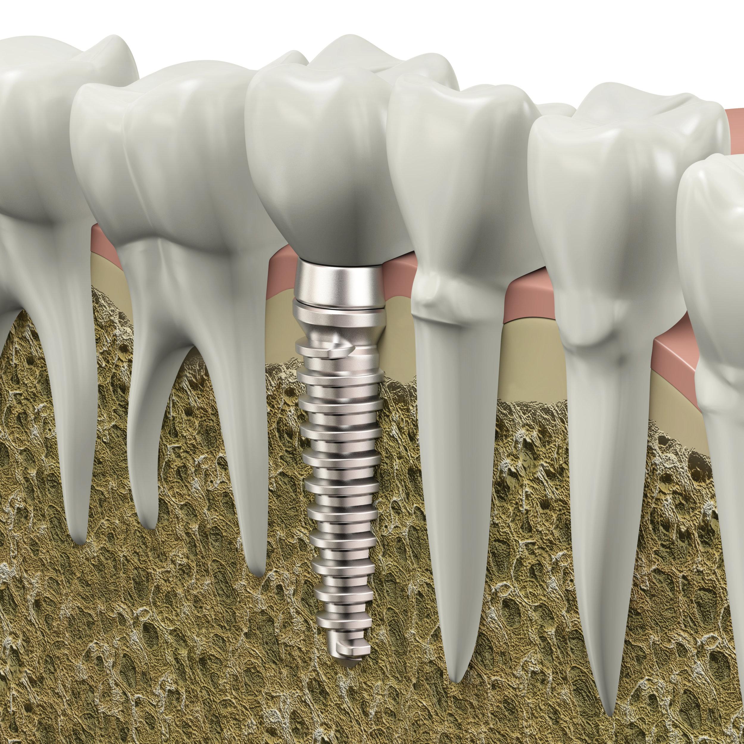 Canva - Dental implant.jpg