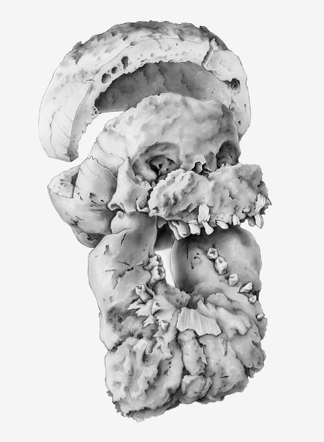 Skull, Paget's Disease