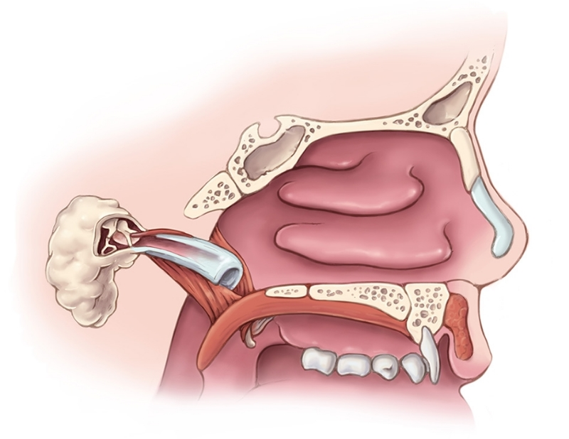Palate and Eustachian Tube: Profile