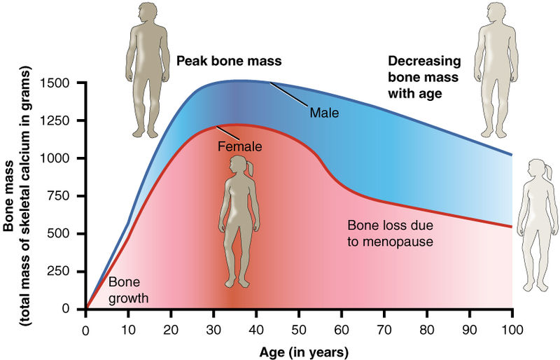 Image:  Age and Bone Mass  by  Anatomy and Physiology, Connexions Website  is used here with permissions granted under the  Creative Commons   Attribution 3.0 Unported  license