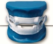 2009: First CadCam Narval - Silicone Covered