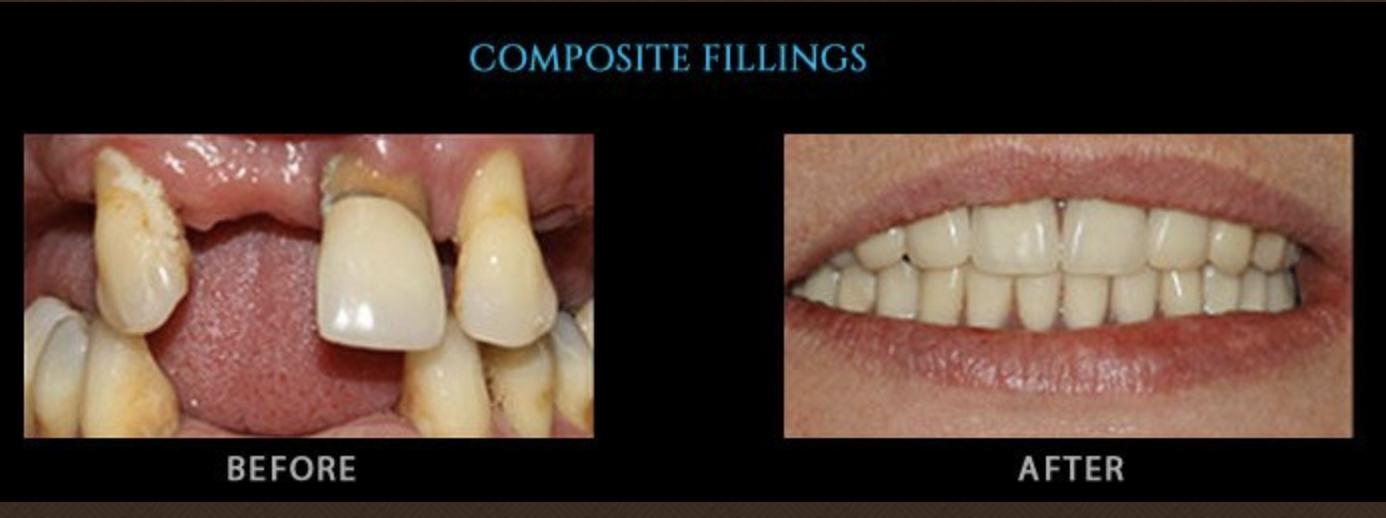 Dental tropes to avoid