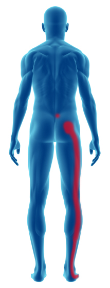 sciatica-piriformis-syndrome.jpg
