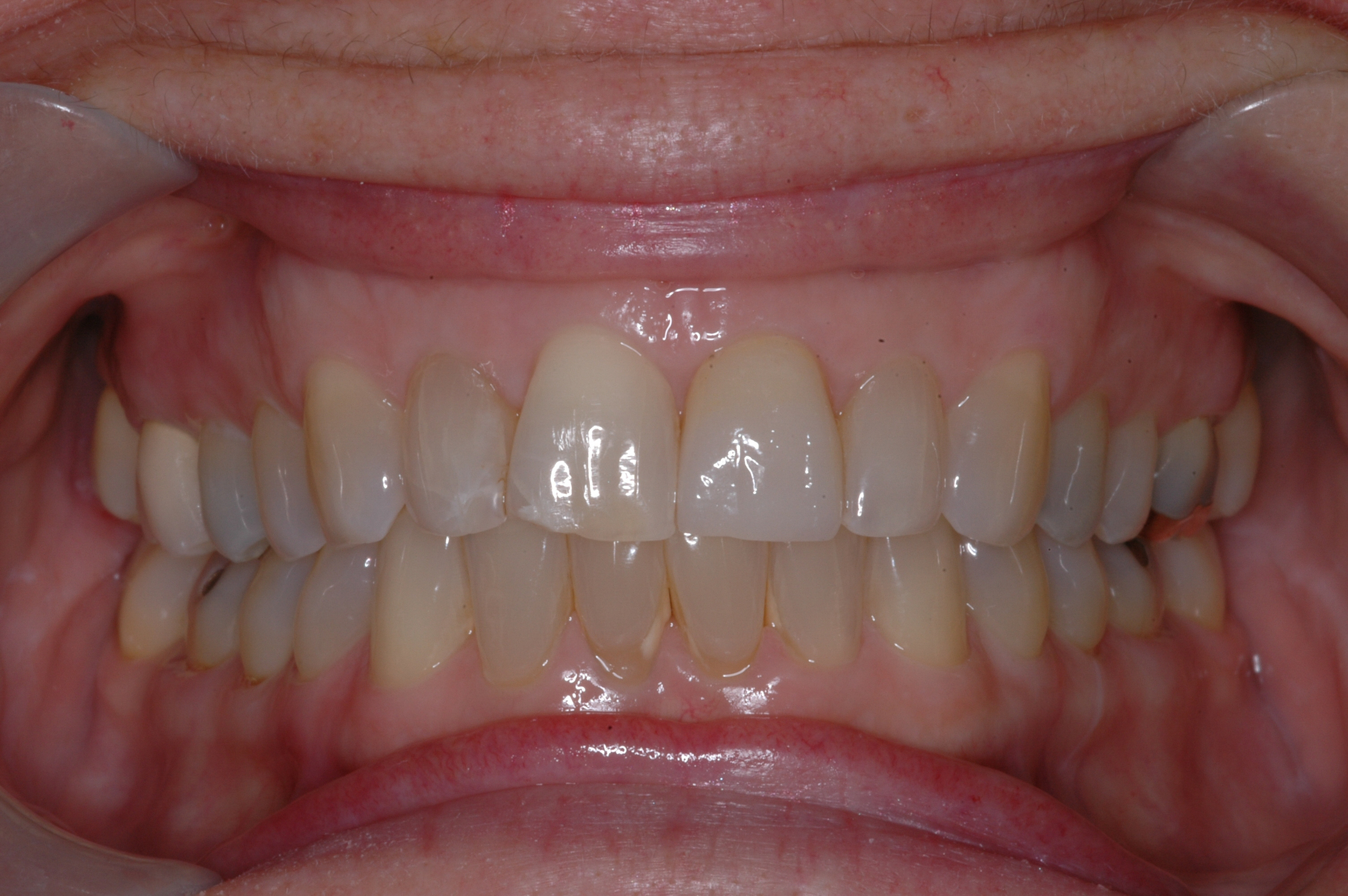 This is the final crown.  Natural looking restorations that blend with natural teeth are attainable.