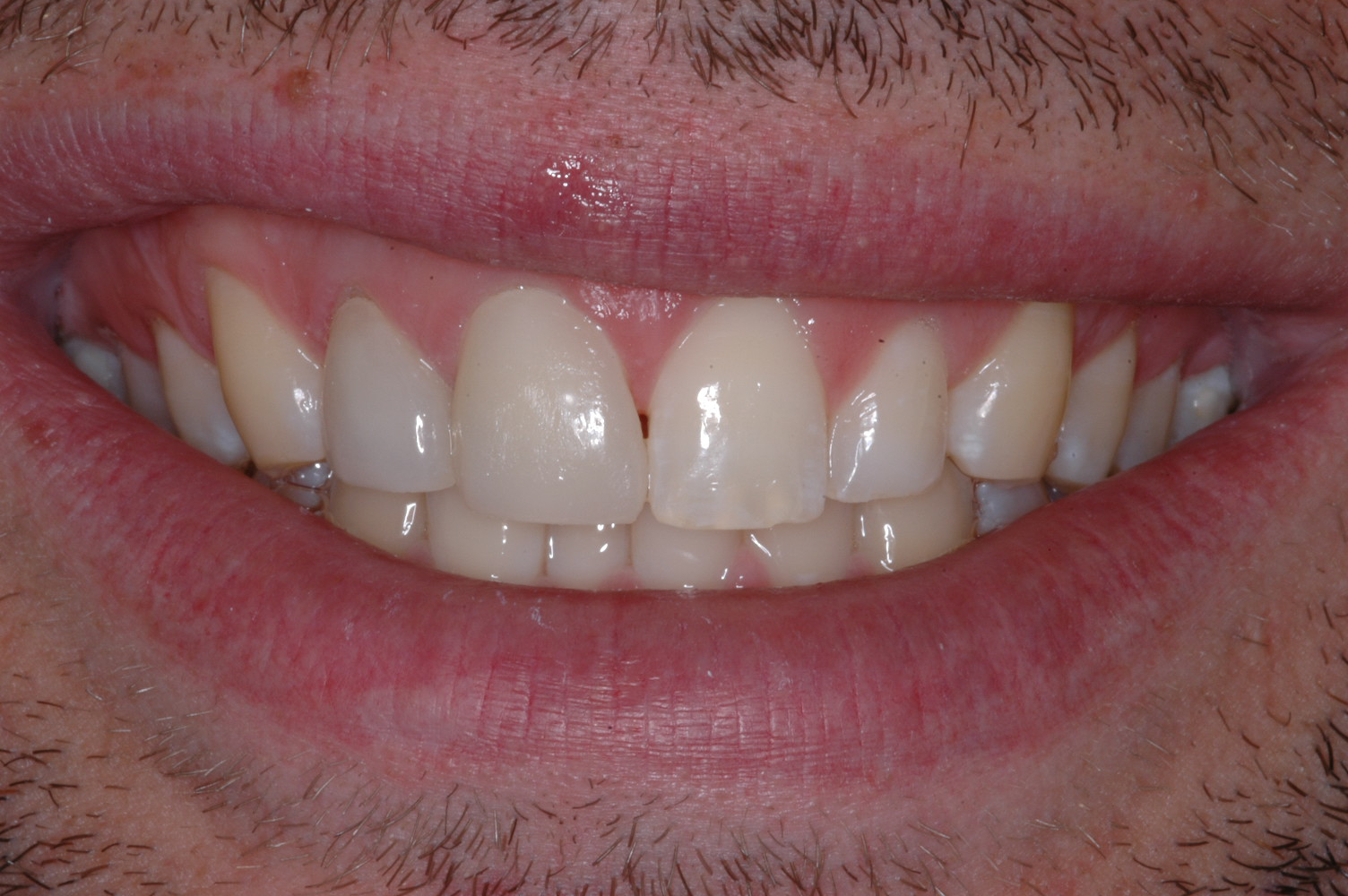 We fabricated all ceramic crowns for the two upper right incisors and added length that greatly improved the symmetry of his smile.