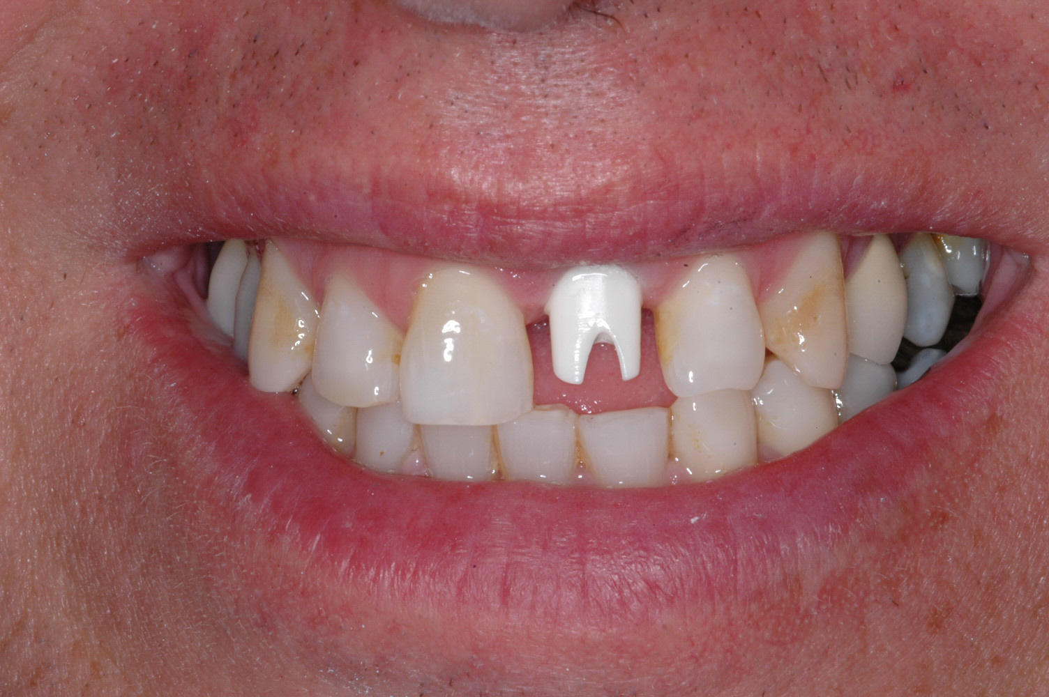 This is a custom zirconium abutment that will support the crown. Zirconium has excellent strength and there will be no metal that is exposed in the final restoration