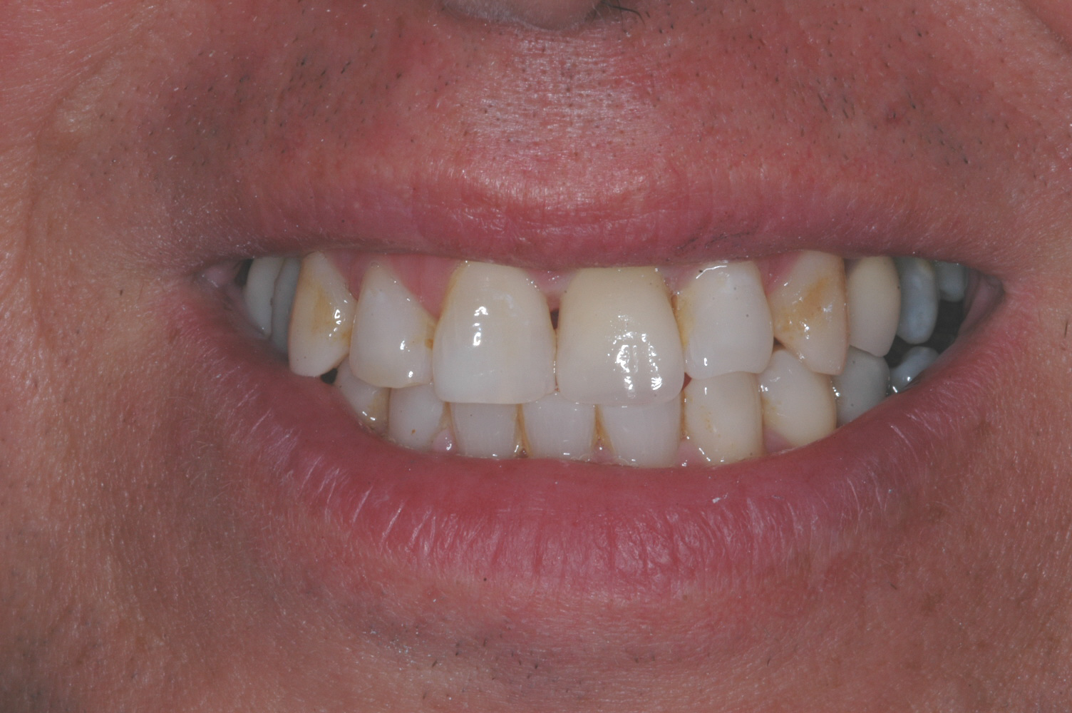 This is the final crown - today's crowns can be very esthetic and indiscernible from the natural teeth.