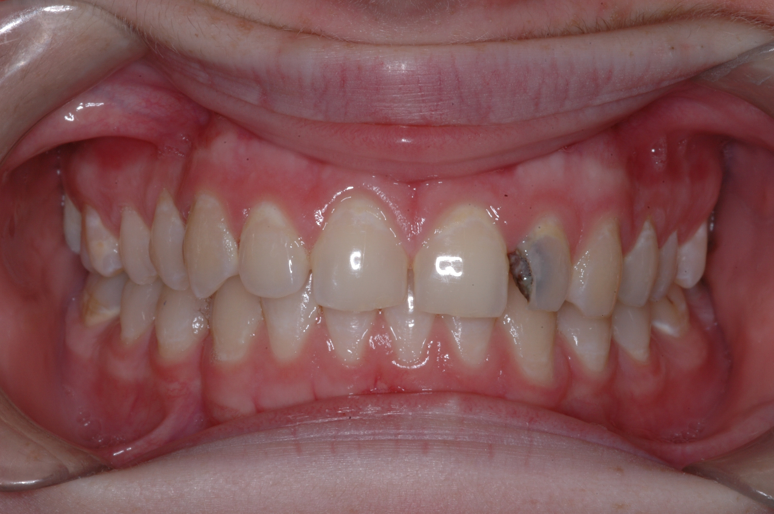 Our patient was an 18 year old female who presented with quite a bit of decay on her left lateral incisor
