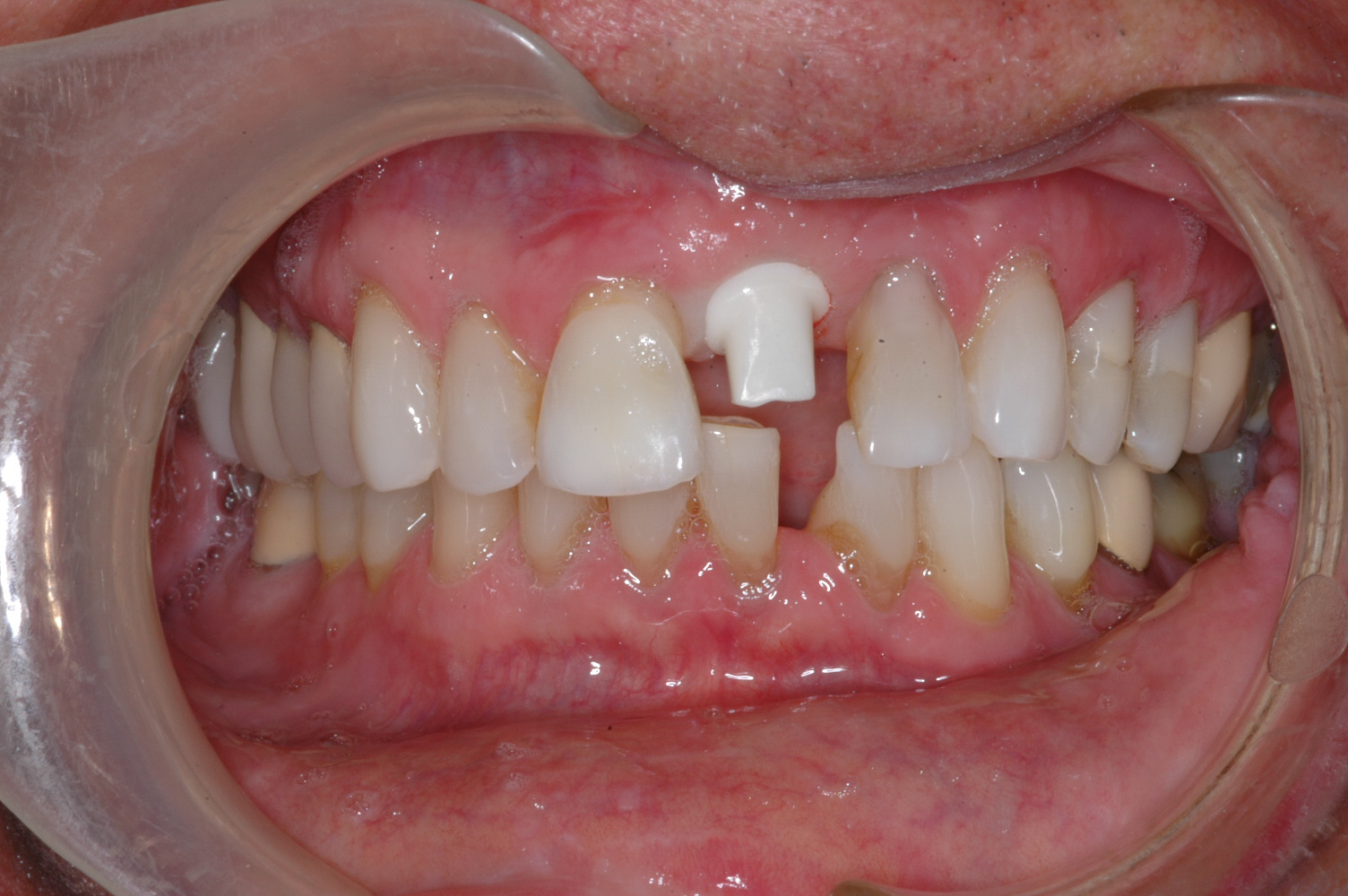 The patient had an implant placed and this is a custom zirconium abutment that will support his crown.