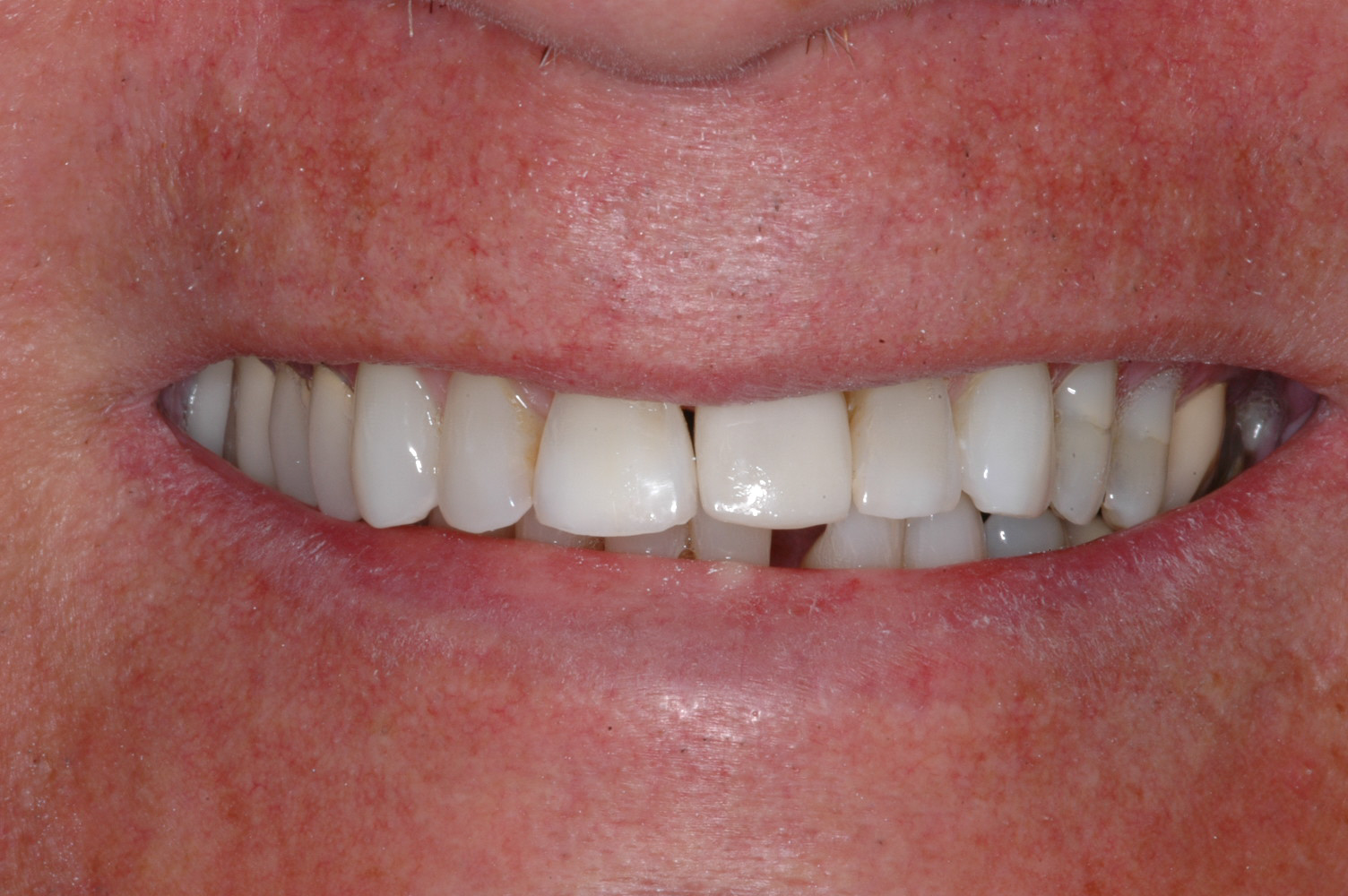 The teeth were whitened and this is the final crown that blends well and has great strength