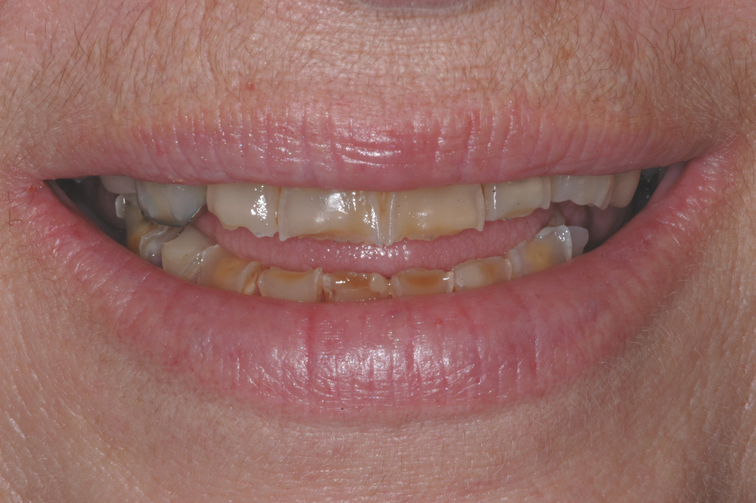 Our patient was a 60 year old female who presented with severe wear/chipping of the front teeth. She also desired an improvement in her smile