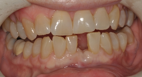 Our patient lost her lower central incisor...