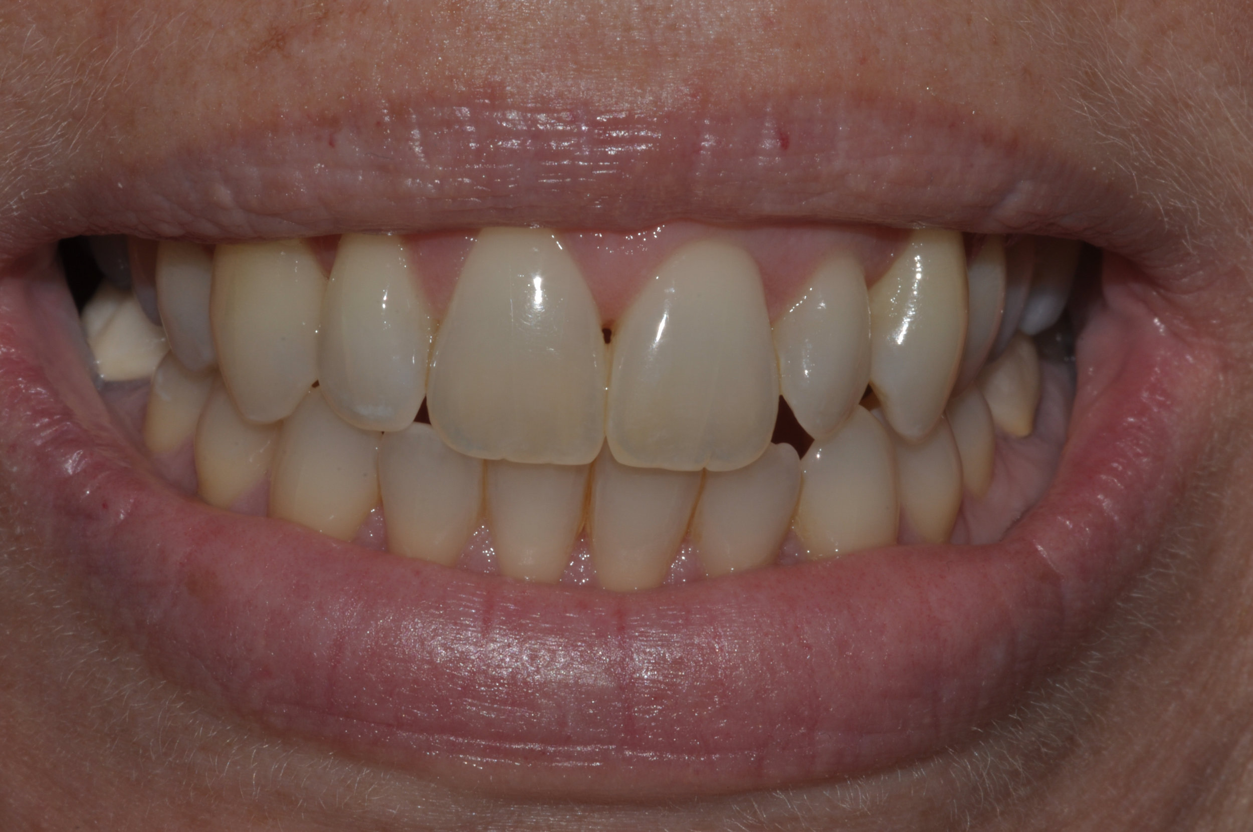 Our patient desired a whiter brighter smile...