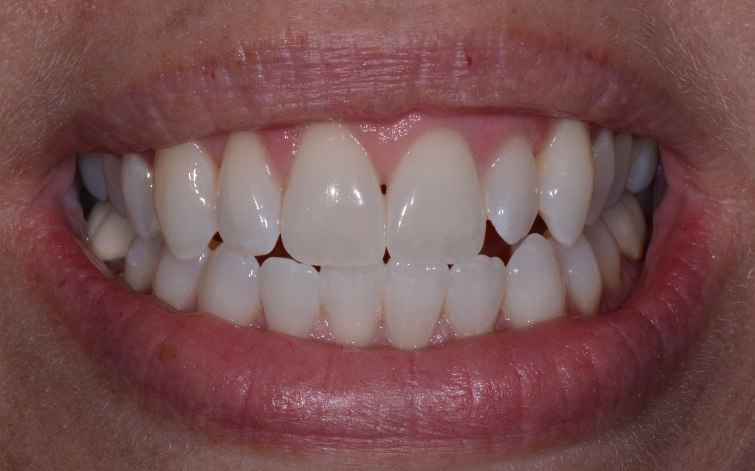 One hour in office ZOOM Whitening - came out fantastic!