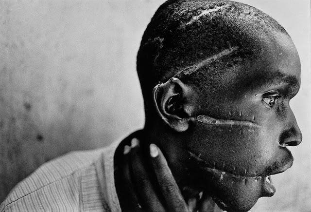 James Nachtwey, Rwanda, 1994, Survivor of hutu death camp genocide