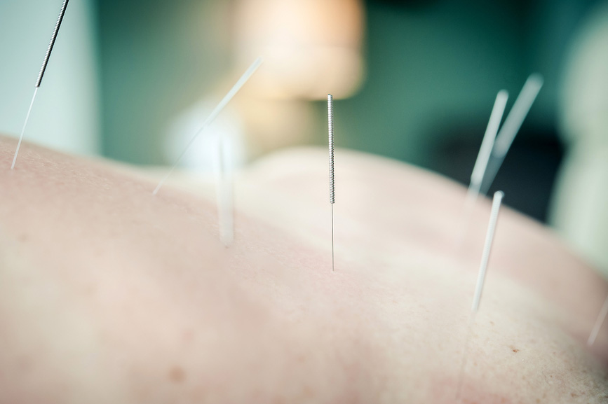 Acupuncture2.jpg