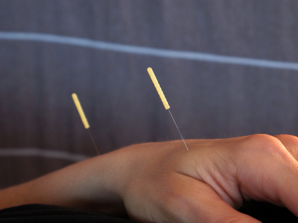 Acupuncture treatment utilizing points that can relax the body and relieve pain.