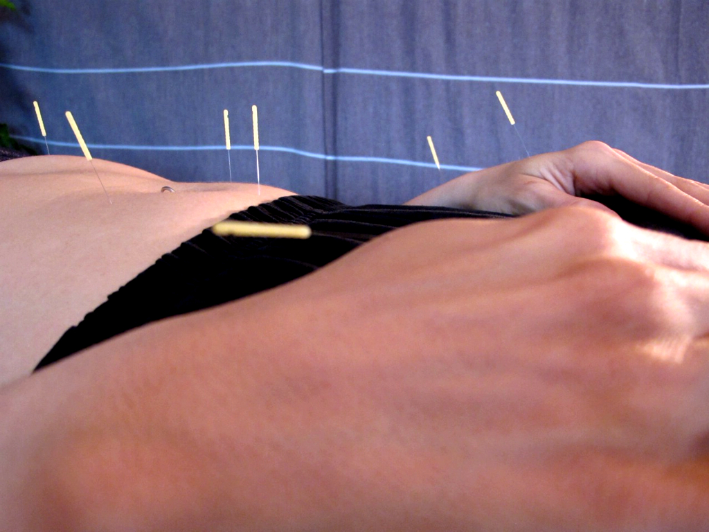 Many patients report feeling relaxed after an acupuncture treatment, with reduced feelings of anxiety and depression, as well as improvements in their sleep.