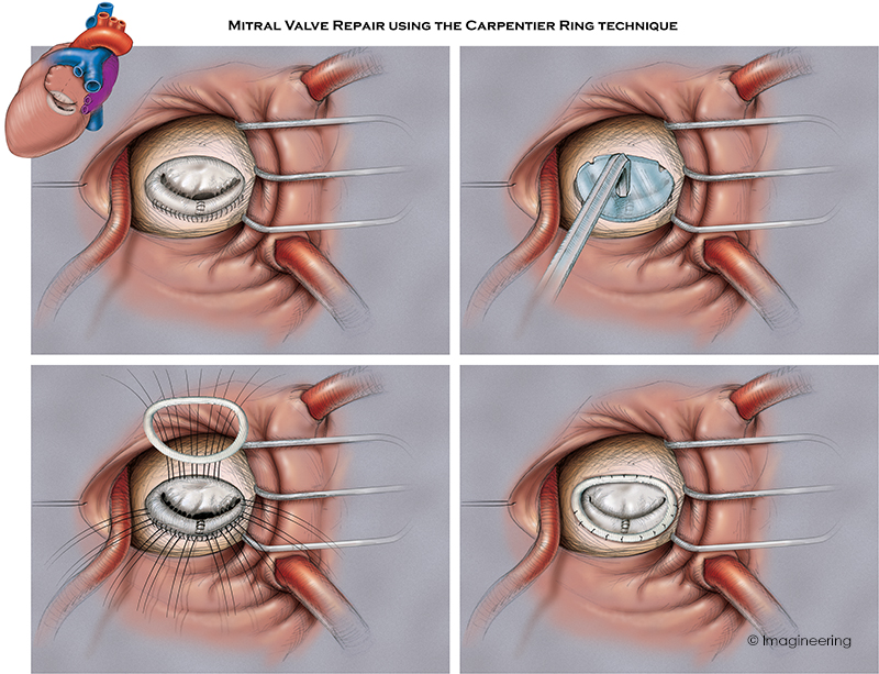 mitral valve repair.jpg