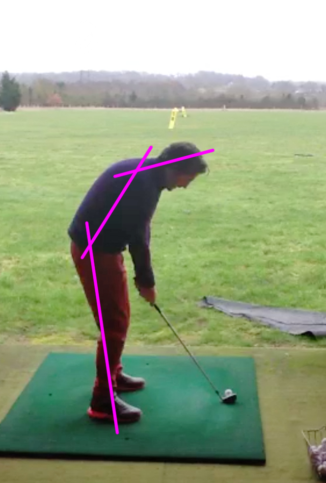 Start of lesson no. 1    Poor, hunched posture limits length of backswing, rotation and gives no room to move.