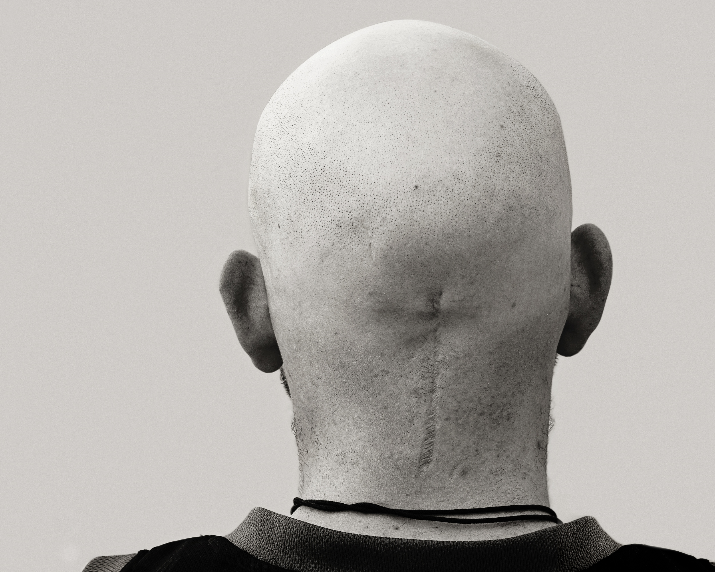 Scar Stories Craig Brain Tumour by Brihanna Rilstone.jpg