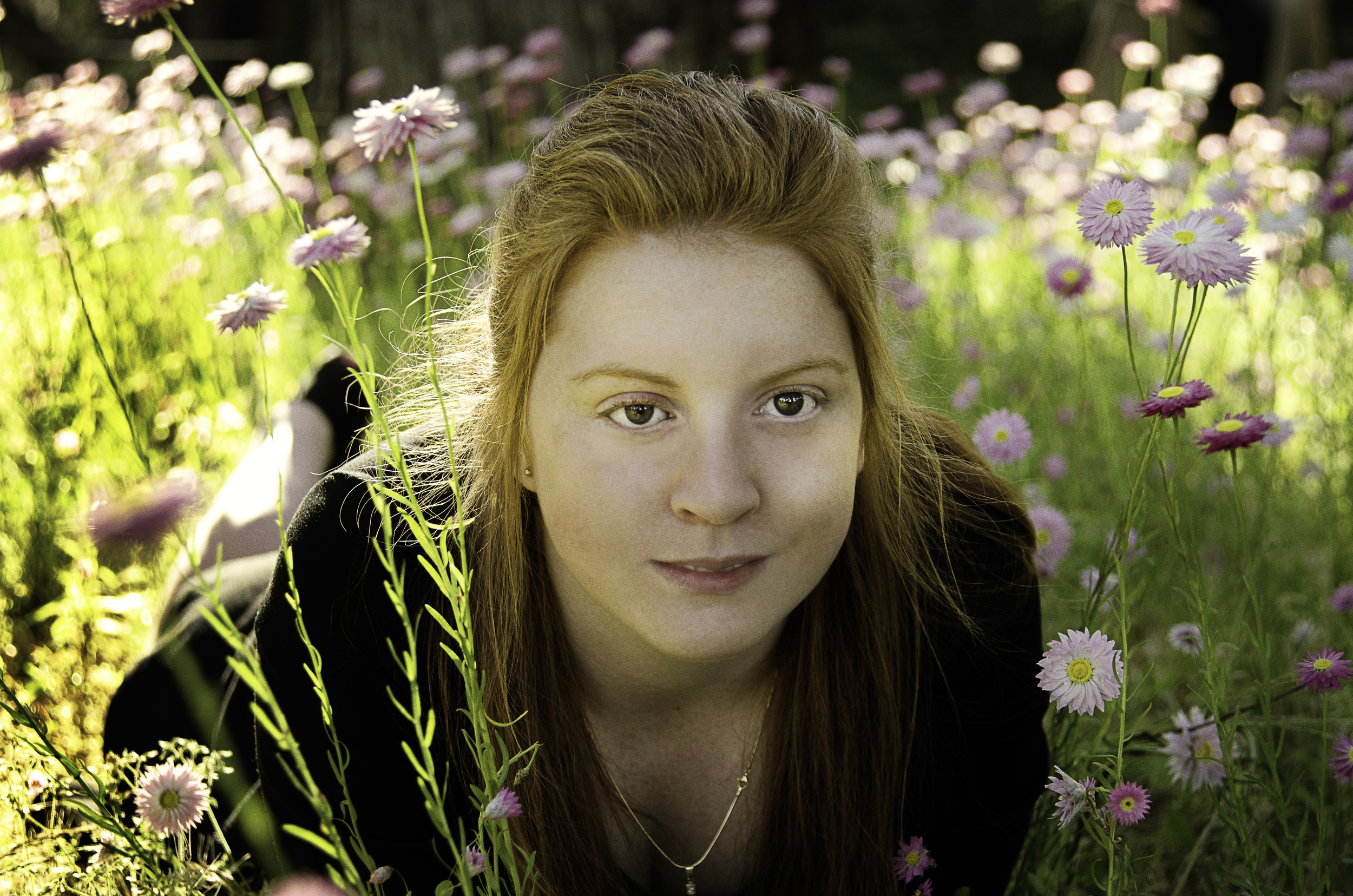 Scar Stories Hayley Retinoblastoma by Fiona Vail.jpg