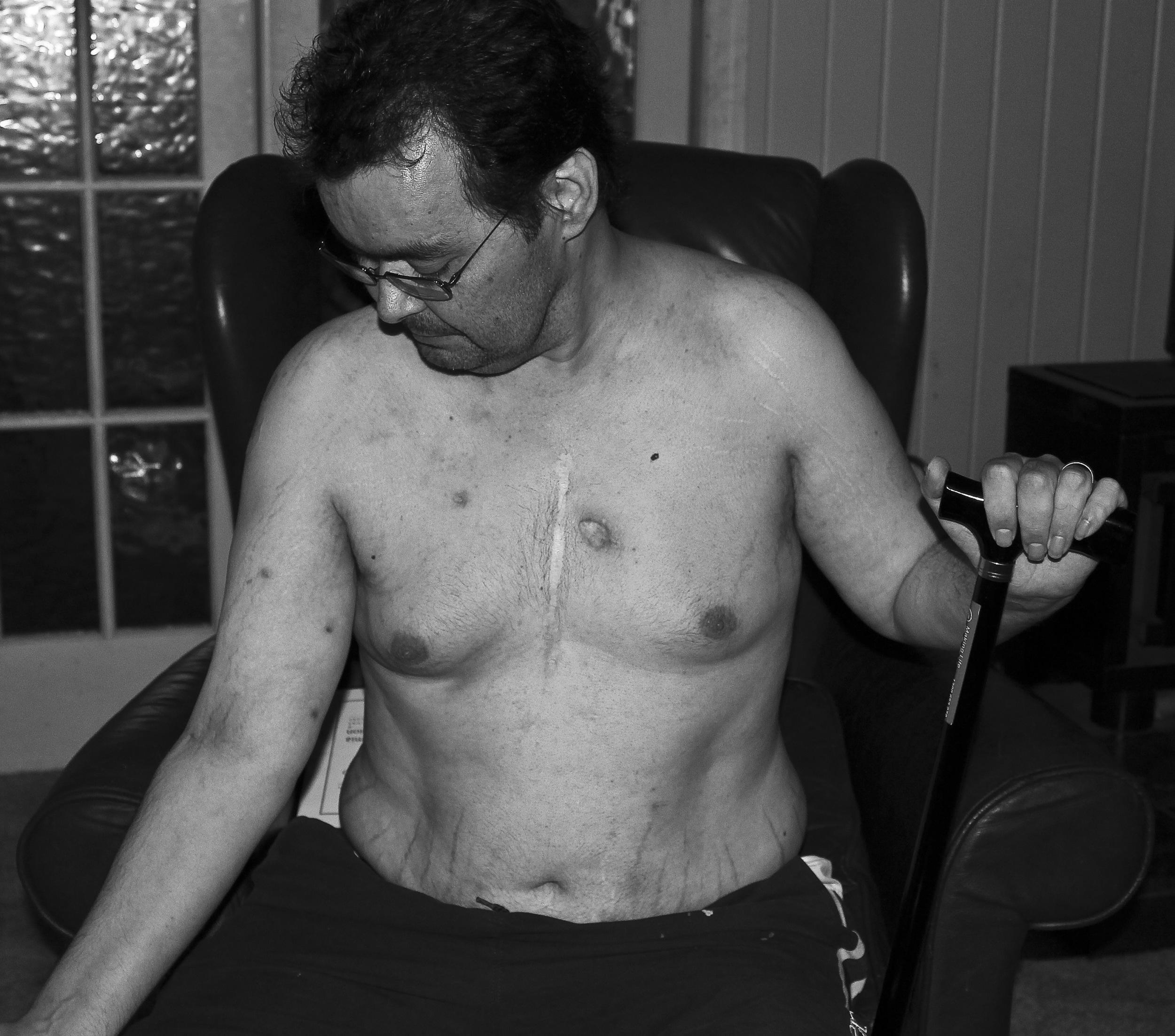 Scar Stories John Nonhodgkins Lymphoma by Michelle Watters.jpg