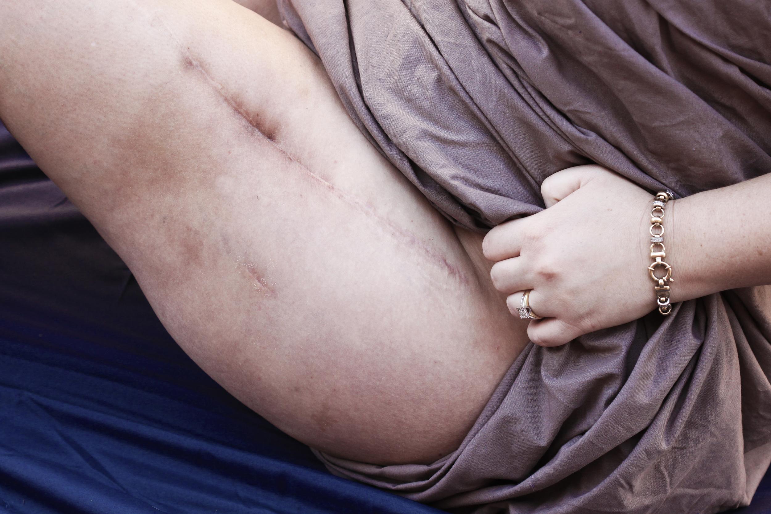 Scar Stories Jamie Ewings Sarcoma by Lisa Auger.jpg