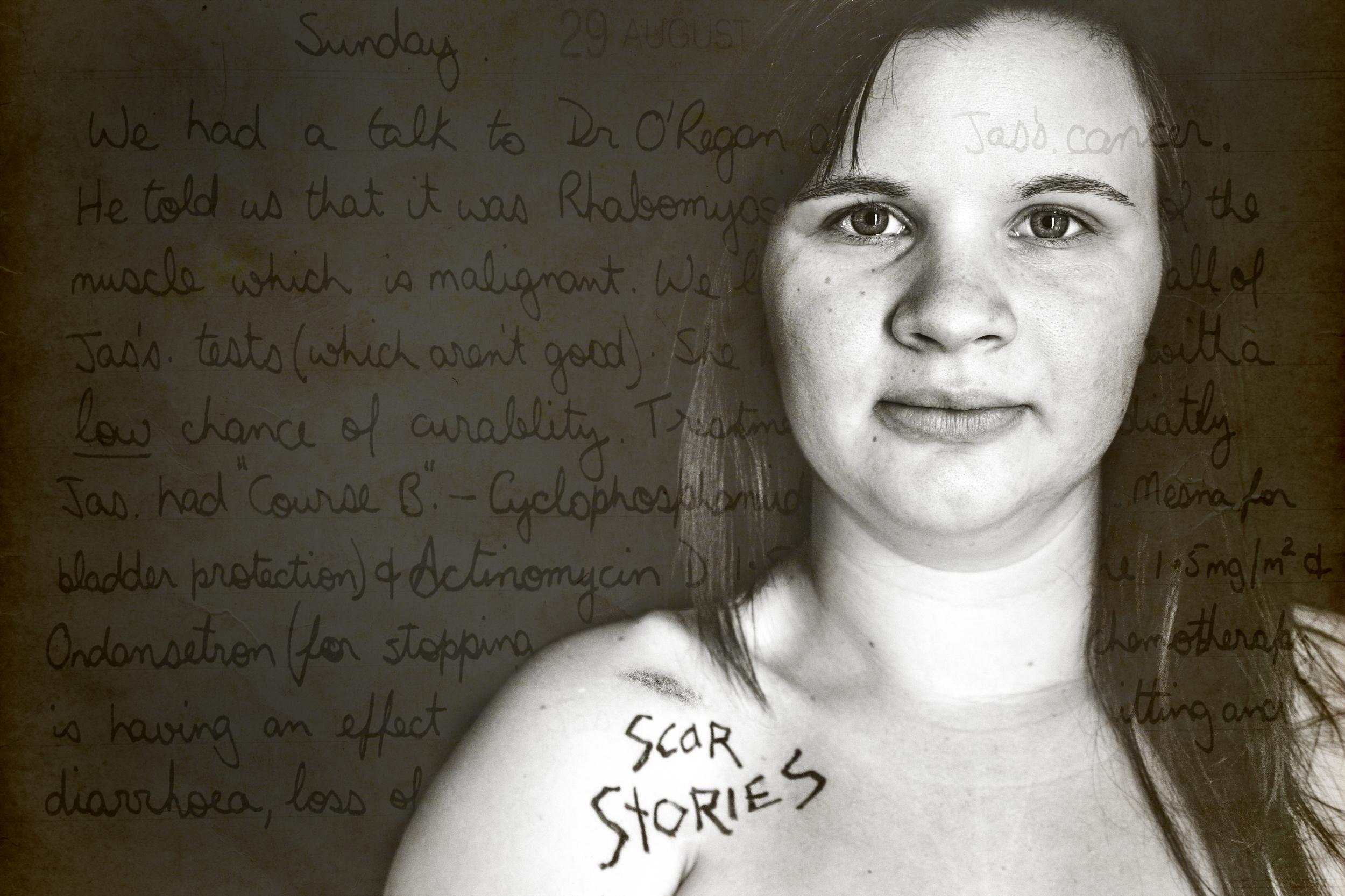 Scar Stories Jas Rhabdomyosarcoma by Charmaine Lyons