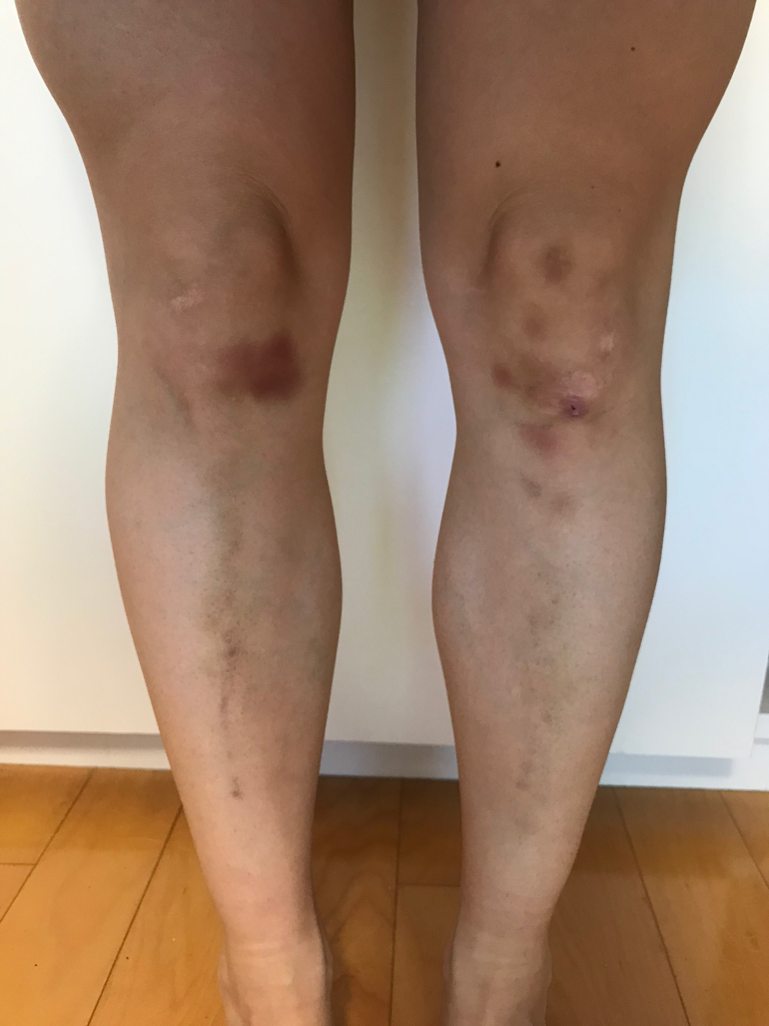 bruised knees.jpg