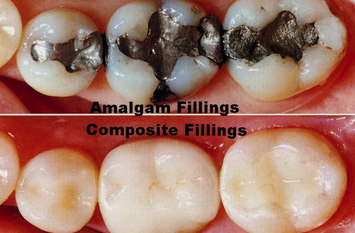 Amalgam fillings replaced with composite resin restorations.