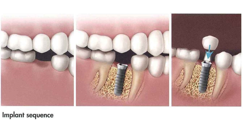 Implant Sequence