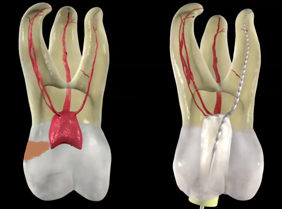 1. Decay causing a Root Canal infection   2. Open And Drain