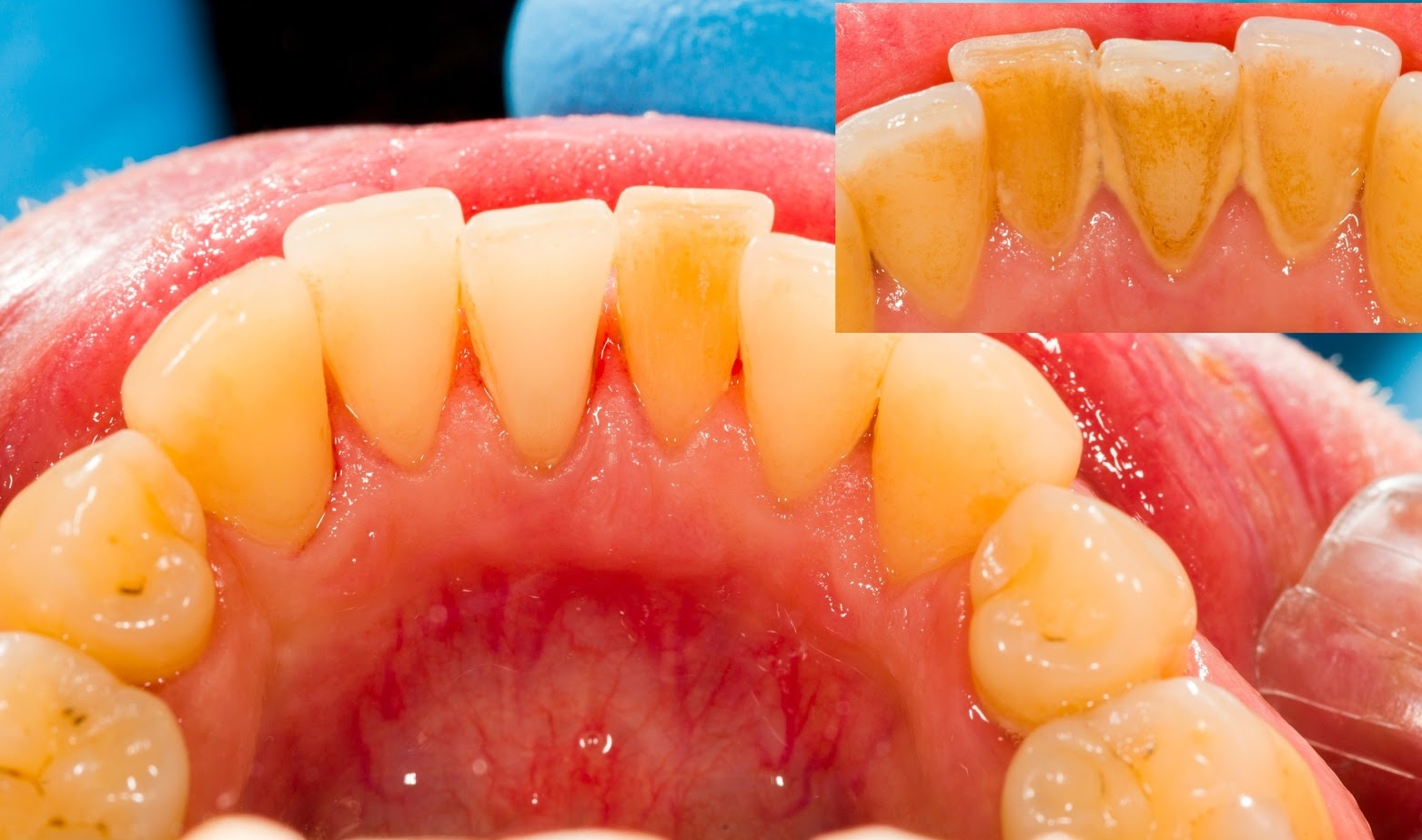After scaling (cleaning)and Before (inset)