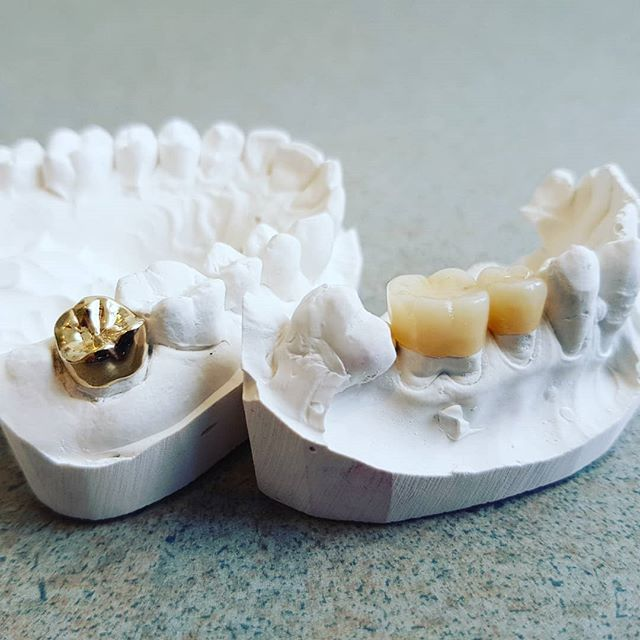 Gold and porcelain: The Classic and modern, each beautiful in their own way!  Thanks to Paul Hartley Dental Ceramics #gold #ceramic #classic #dental #dentalceramics #toorak #toorakrd #toorakrdsouthyarra #southyarra #malvern