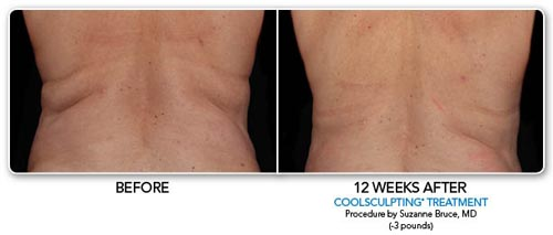 coolsculpting12.jpg