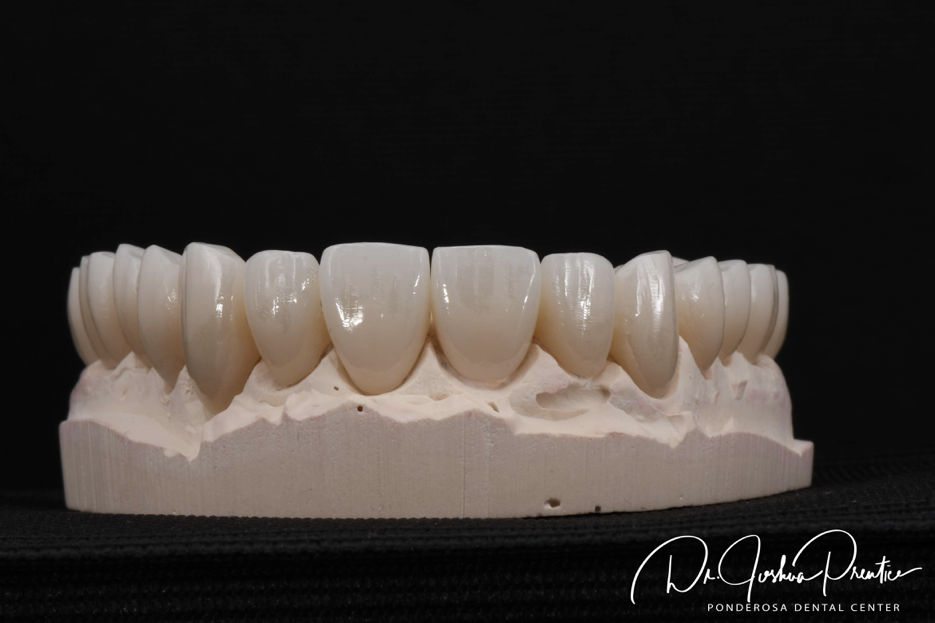 dentalceramicslabwork.png