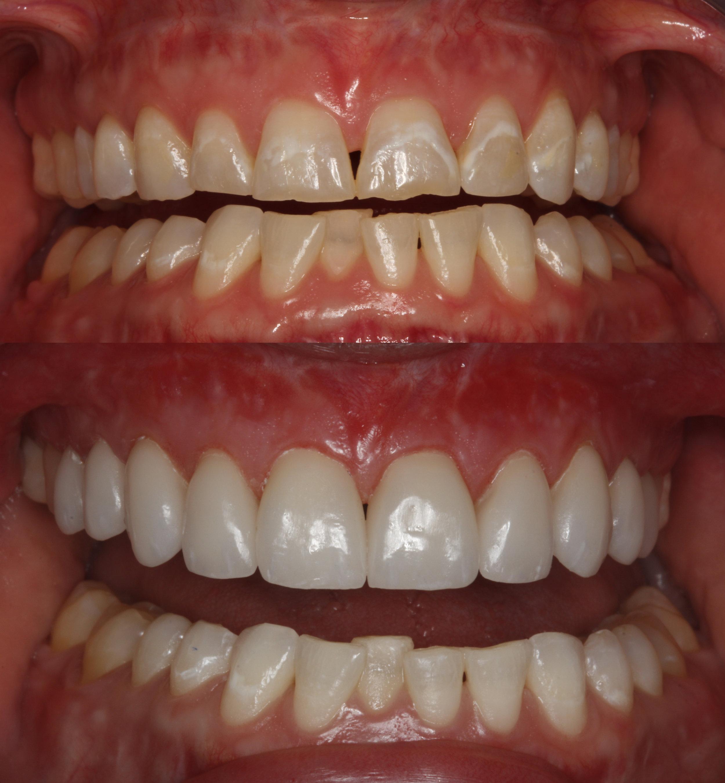 dentalceramicslabworkthompson.jpg