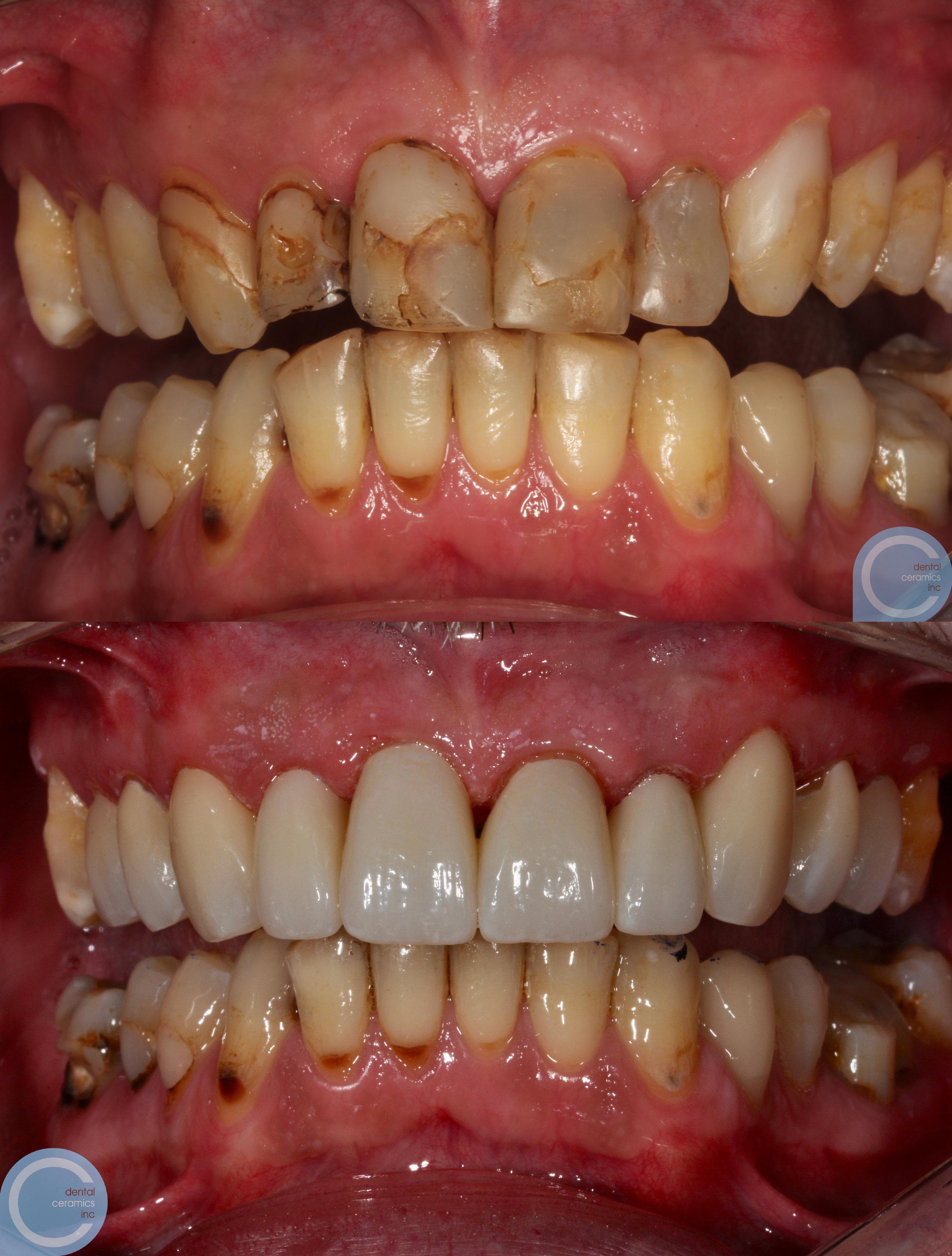 dentalceramicslabworkfitz.jpg