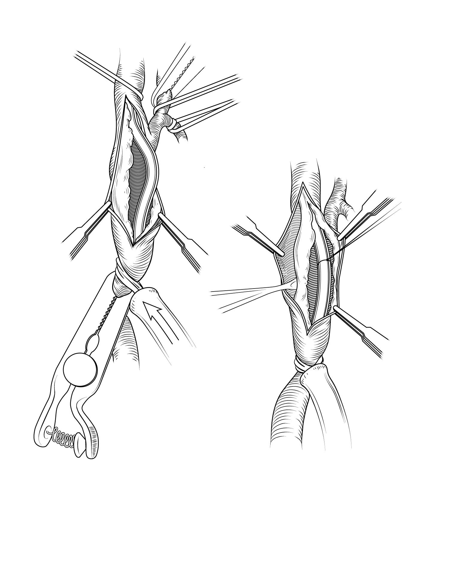 Carotid endarterectomy.